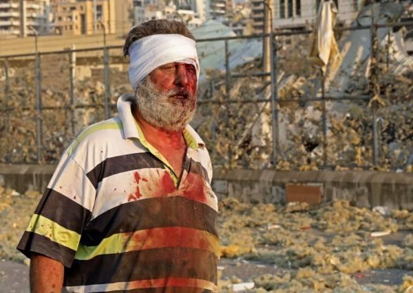 حريق كبير ومئات الجرحى وأضرار هائلة جراء انفجار مرفأ بيروت