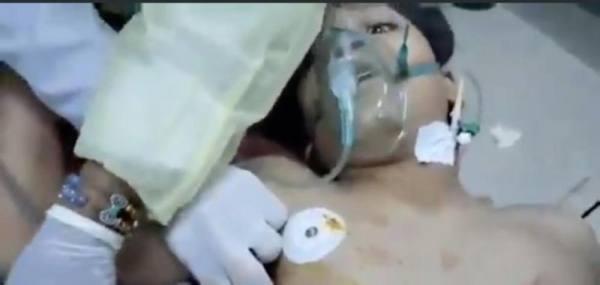 بصاروخ حوثي إيراني.. طفل يمني يلفظ أنفاسه أمام الكاميرات