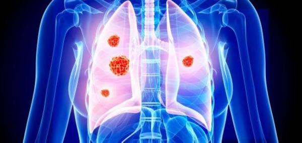 منتدى سرطان الرئة: الفحص المبكر يخفض الوفيات بالخليج 30%