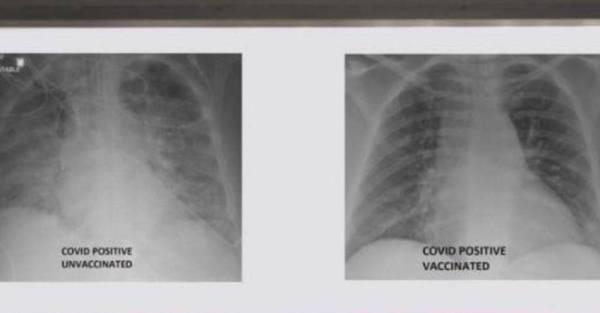 صور أشعة تكشف تدمير